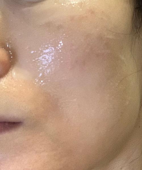 カナデル プレミアリフト オールインワンを肌に伸ばした状態の写真